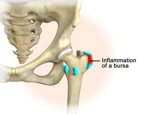 hip burstitis