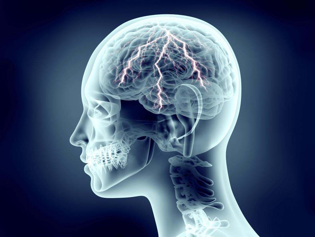 Seizures THC - CBD |Queens Medical Marijuana Doctor in Forest Hills, NY